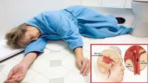 Trời rét đậm, cẩn thận nguy cơ đột quỵ và đột tử: Bác sĩ mách 9 cách phòng ngừa